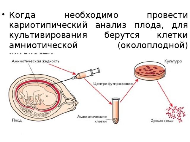 Когда необходимо провести кариотипический анализ плода, для культивирования берутся клетки амниотической (околоплодной) жидкости